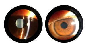 Binocular view of eyes through the SK-LS-1B optical slit lamp from SK-Med and Coburn Technologies.