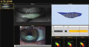 Meibography and 3D meibomian gland imaging. Auto length and width with loss area percentage. 3D images.