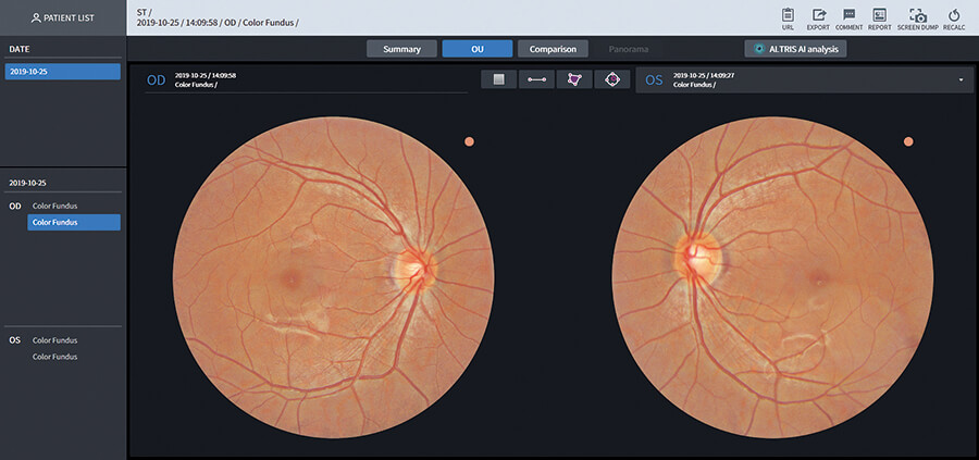 Screenshot image of the web browsing system function for the Huvitz HFC-1 Non-Mydriatic Fundus Camera. Shows a web browser with two images of the retina and data associated with the images.