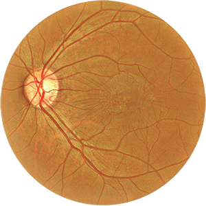 A circular image showing a diagnostic image of the retina of the eye, specifically the epiretinal membrane. Enhanced Visualization Technology is applied making the retinal image brighter and highly visible.