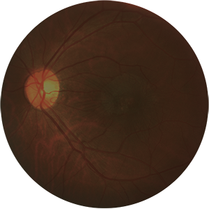 A circular image showing a diagnostic image of the retina of the eye, specifically the epiretinal membrane. Enhanced Visualization Technology (EVT) is not applied, therefore making the visibility of the retina poorer than when EVT is applied.